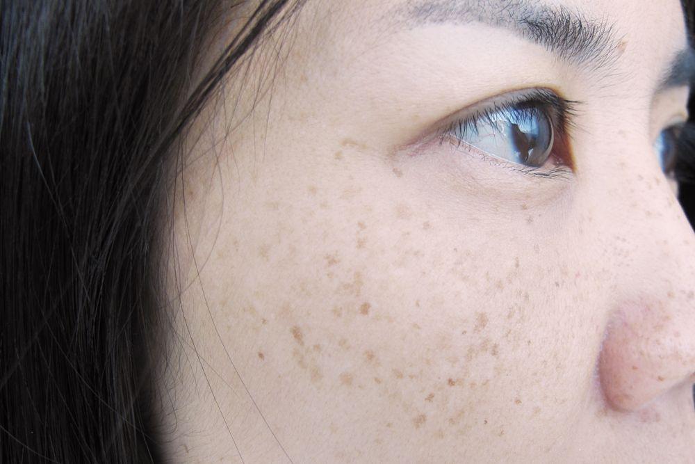 色斑成因1. 遺傳