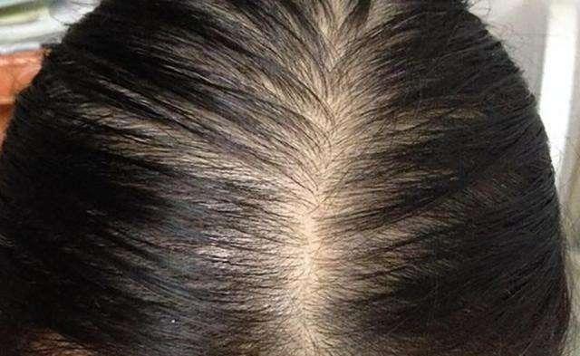 脂溢性脫髮原因3. 個人體質