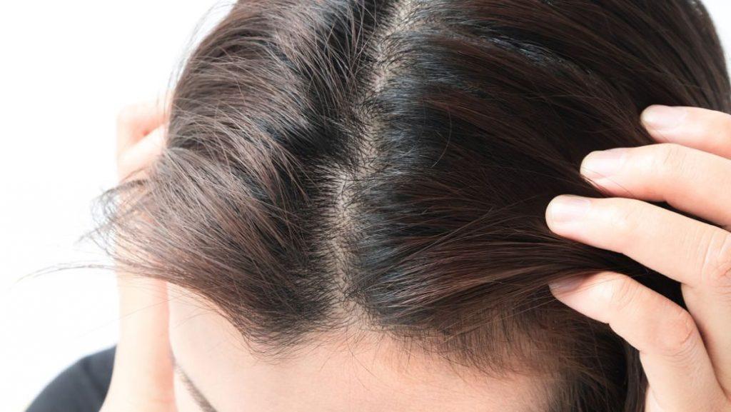 脂溢性脫髮原因5. 過度清潔