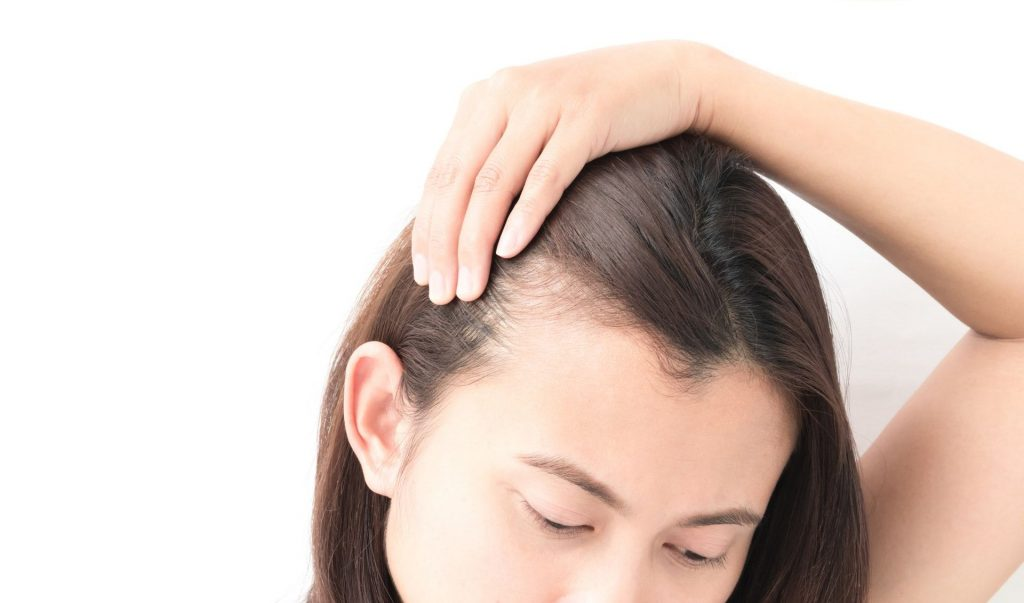 脂溢性脫髮原因1. 遺傳