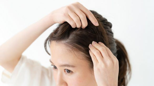 脂溢性脫髮症狀1. 頭油過多