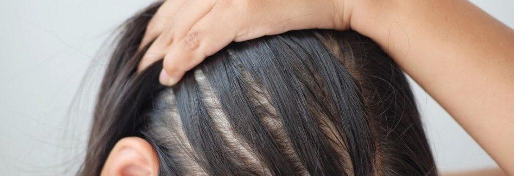 植髮的3大步驟