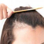 alopecia-drug