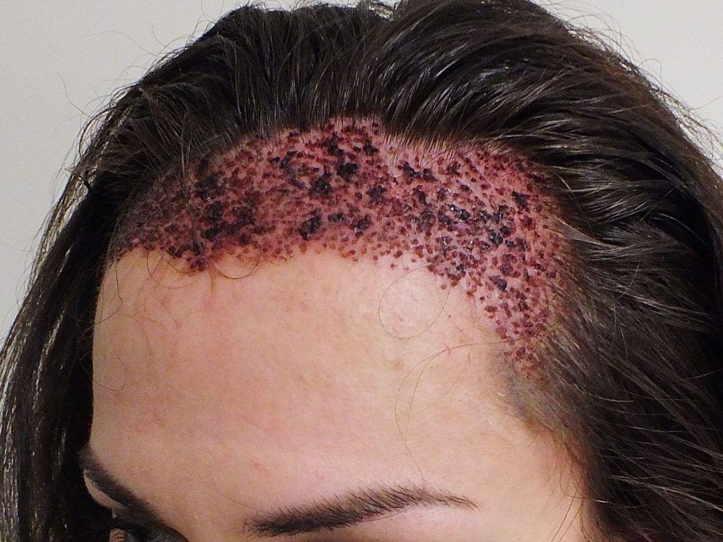 植髮效果1. 傷口滲血