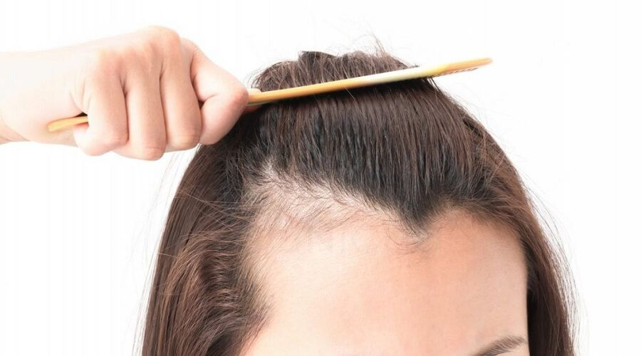 不適合植髮原因3. 擁有疤痕體質