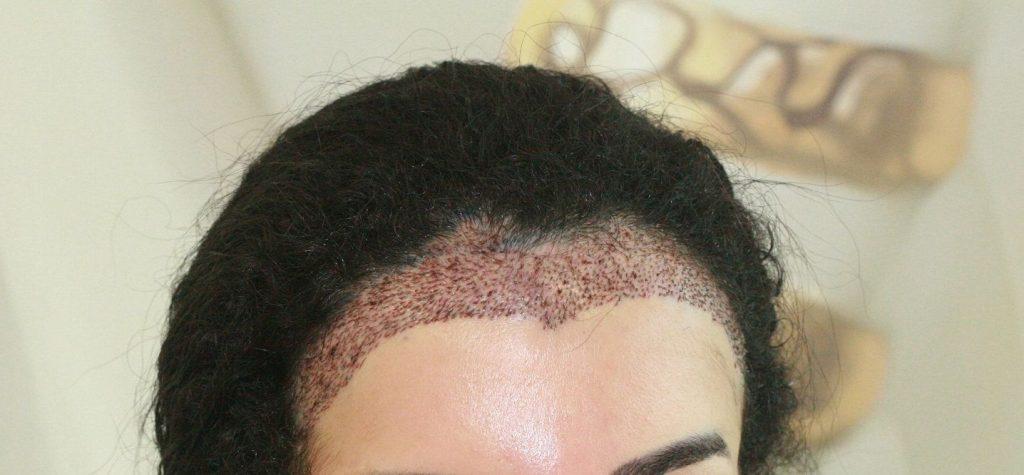 植髮效果2. 適度脫髮