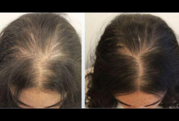 植髮步驟3. 植髮