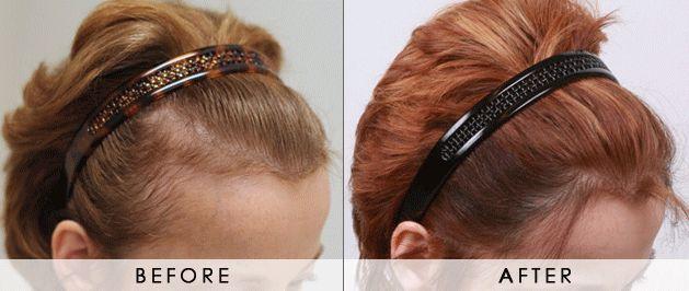 植髮步驟1. 取髮