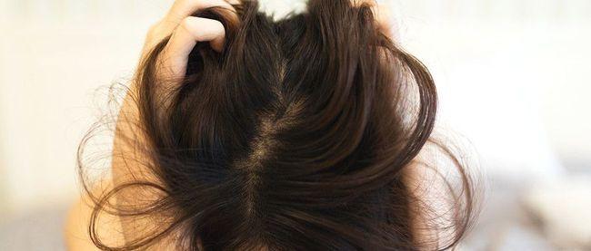 脂溢性脫髮症狀2. 頭臭、頭痕