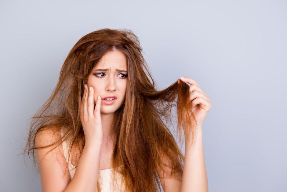 脂溢性脫髮症狀3. 頭皮屑增加