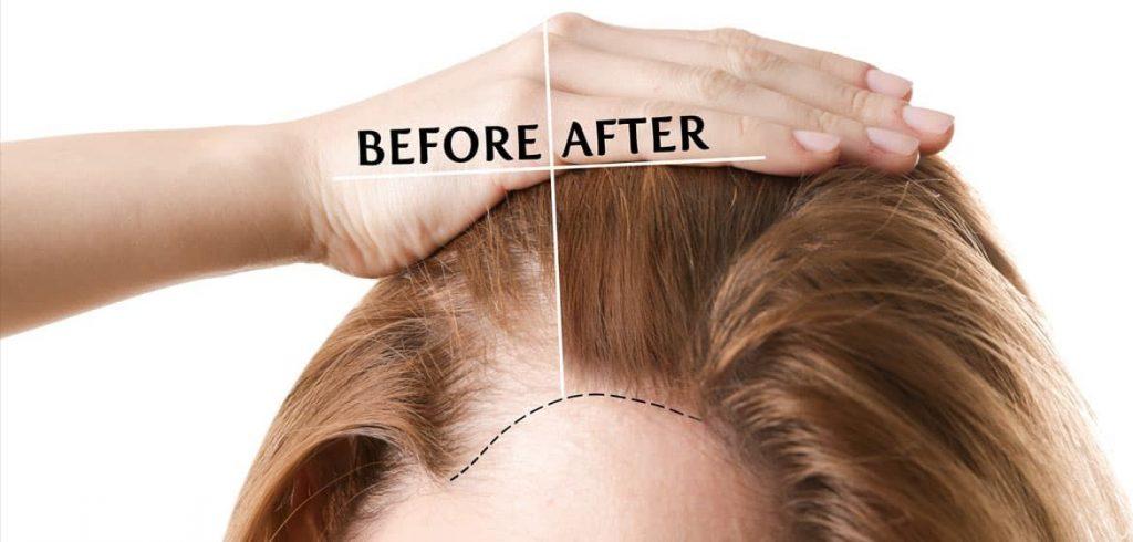 脫髮治療方法1. 植髮手術
