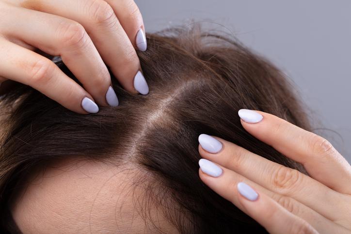 植髮效果4. 穩定生髮
