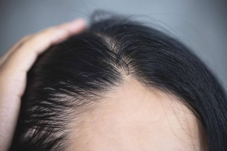 植髮失敗風險4. 再次植髮
