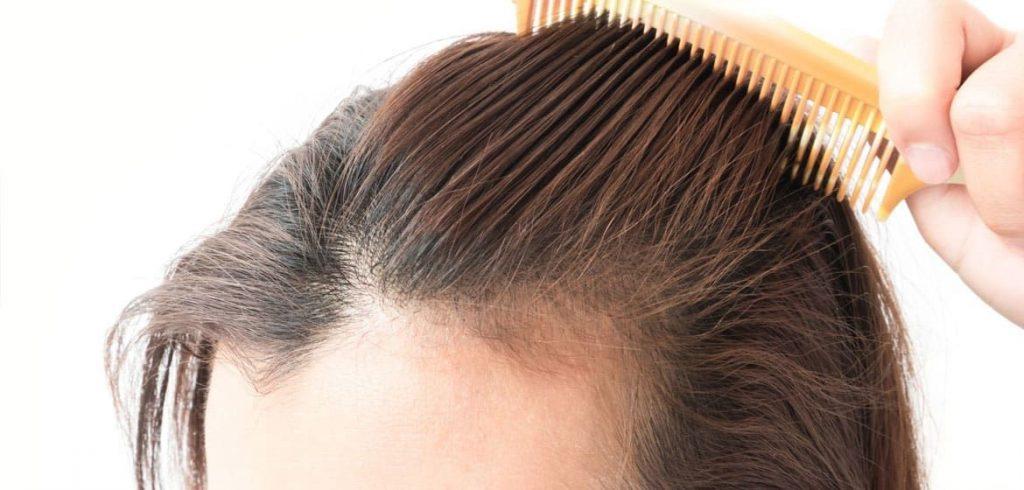 適合進行植髮人士1. 有充足健康頭髮毛囊