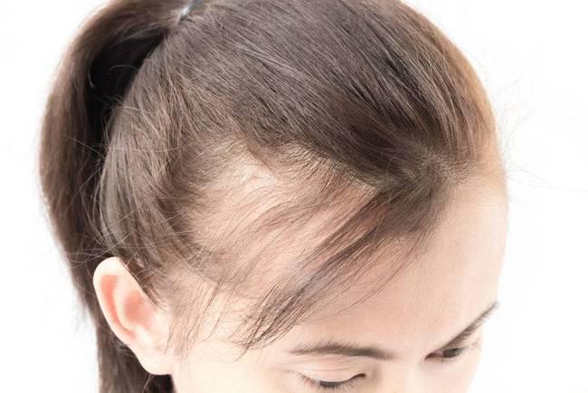 髮際線後移