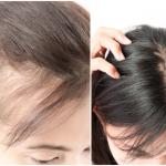 androgenetic-alopecia-female