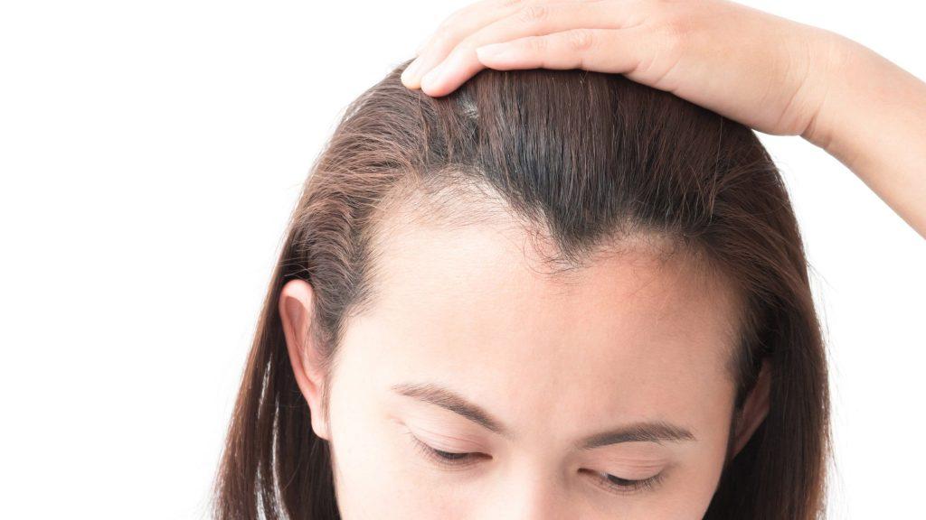 植髮步驟2. 分髮
