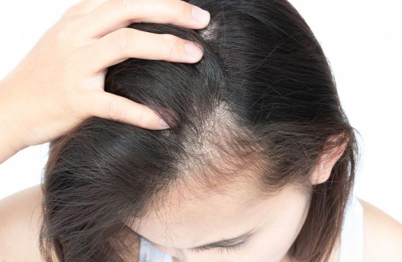 改善脂溢性脫髮方法4. 保持頭皮健康
