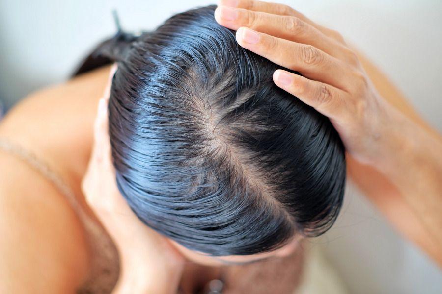 甚麼是脂溢性脫髮?