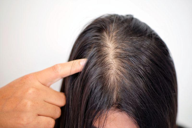 急性脂溢性脫髮