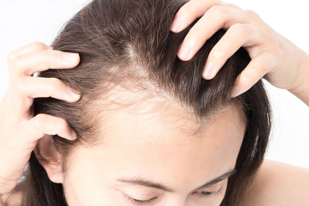 女性脫髮原因4. 產後影響