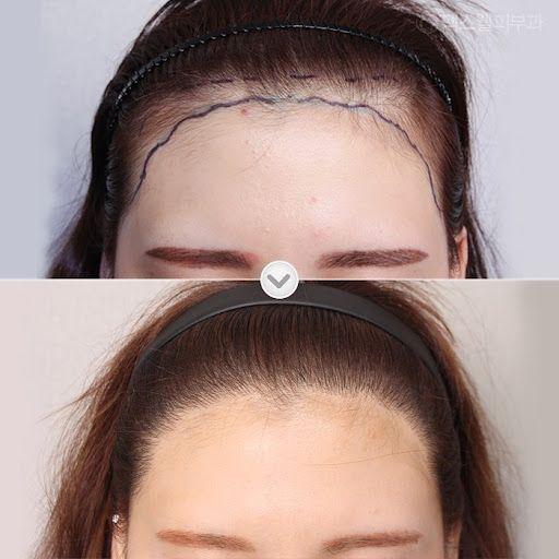 植髮技術比較:FUT V.S. FUE V.S. DHI V.S. ARTAS