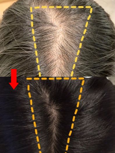 紋髮副作用3. 頭皮過敏