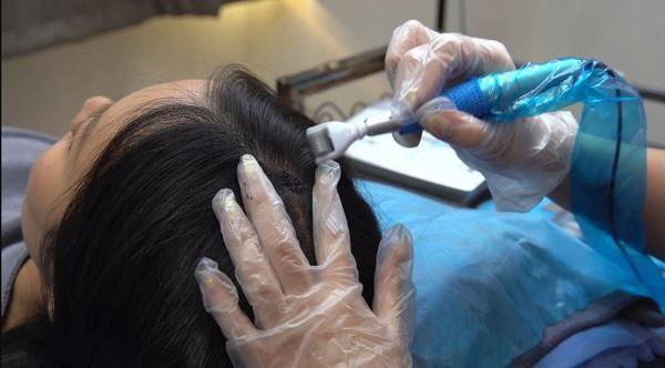 紋髮副作用5. 留下明顯疤痕