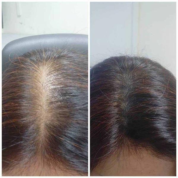 紋髮副作用1. 細菌感染