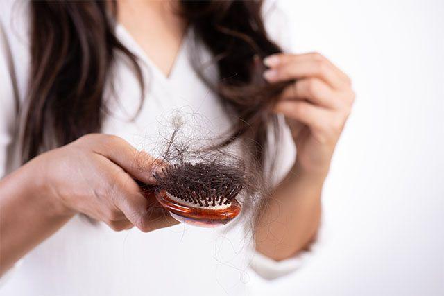 女性脫髮3. 斑禿