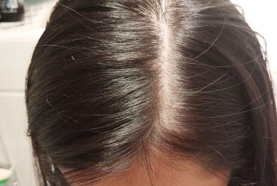 紋髮副作用2. 傳染病感染