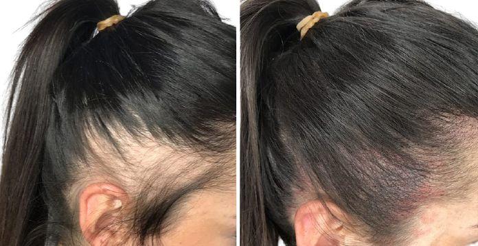 紋髮缺點2. 增髮效果不持久
