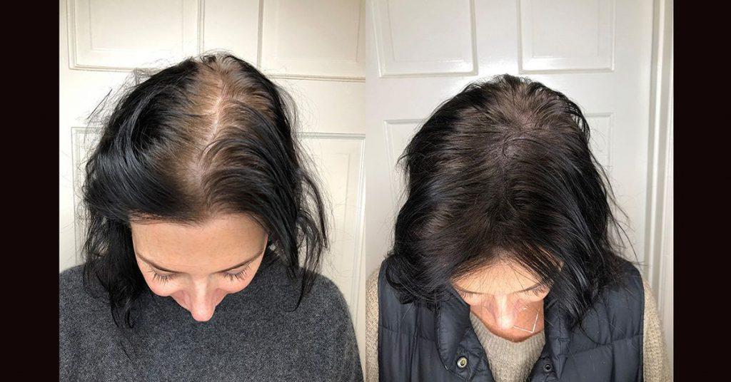 紋髮好處1. 快速增髮效果