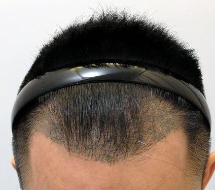 紋髮缺點3. 過程有痛楚