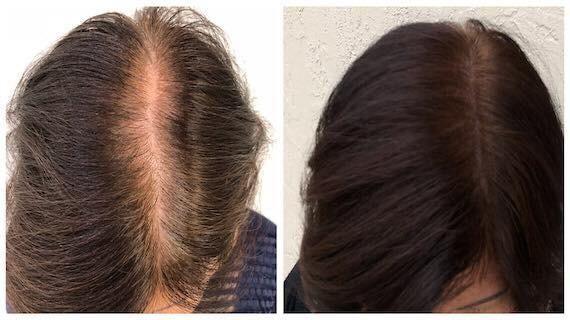 紋髮缺點4. 效果因人而異