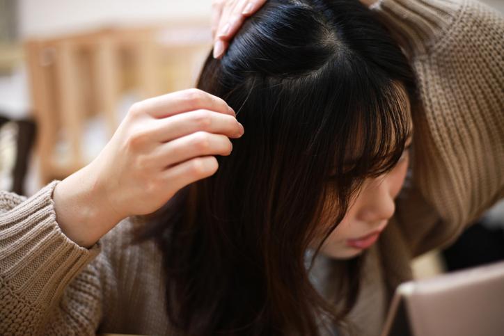 紋髮副作用4. 加劇脫髮問題