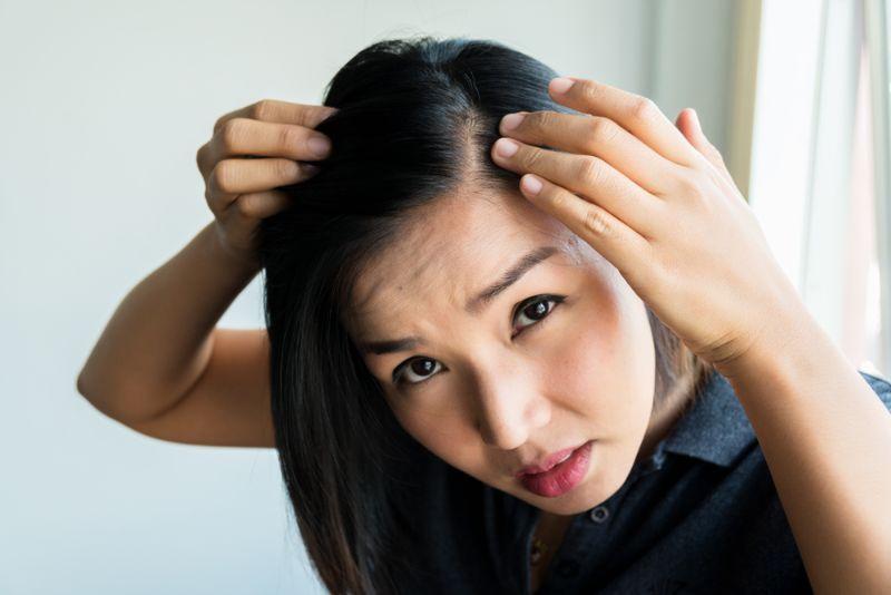 生髮藥物副作用1. 脫髮復發