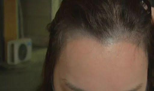 紋髮缺點1. 沒有立體感